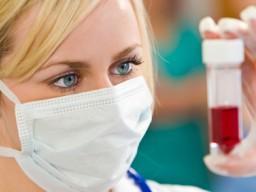 Untersuchung einer Blutprobe