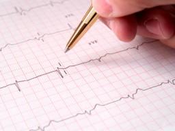 Elektrokardiogramm - Diagnostik Herzinfarkt