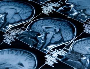 Diagnostik in der Neurologie - Bildgebung des Kopfes
